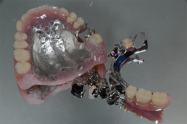 コバルト床入れ歯