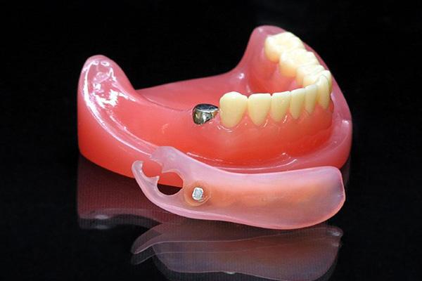磁性アタッチメント入れ歯